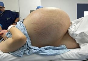 女子卵巢重32公斤