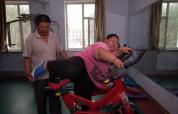 16岁少女因激素致330斤