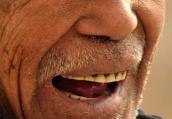 老人掉牙不镶牙当心老年痴呆 糖尿病不宜种植牙