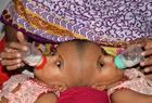 孟加拉头部连体女婴